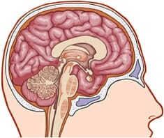 Gehirnhautentzündung, Meningitis