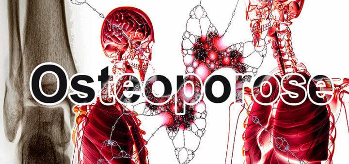 Osteoporose | Krankheitslexikon