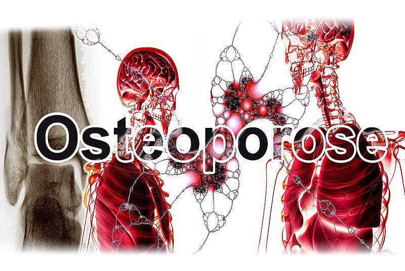 Osteoporose - Knochenschwund