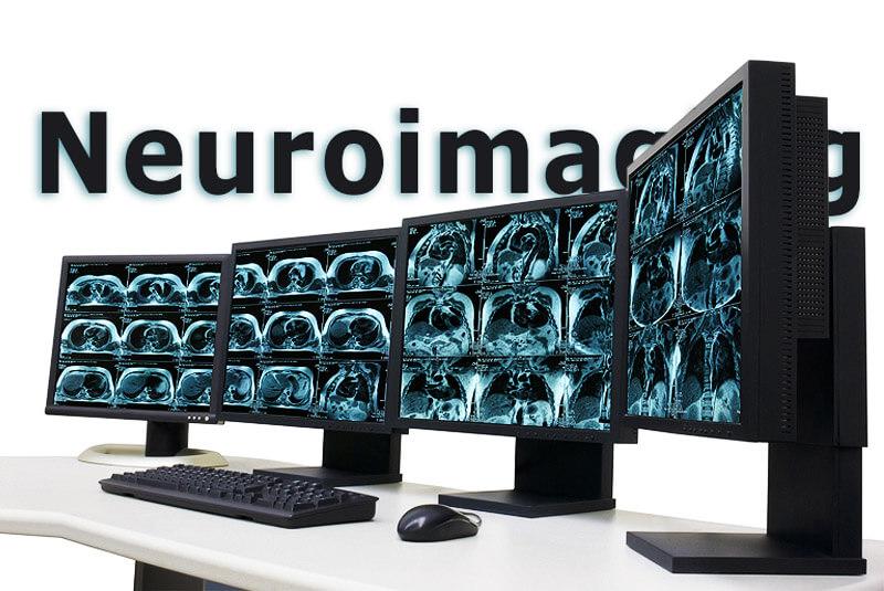 Neuroimaging – Bilder aus dem Gehirn