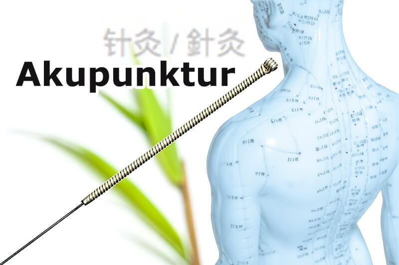 Akupunktur: feine Nadeln, starke Wirkung