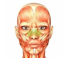 Sinusitis, Nasennebenhöhlenentzündung
