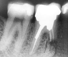 Zahnerkrankungen, Karies, Parodontitis