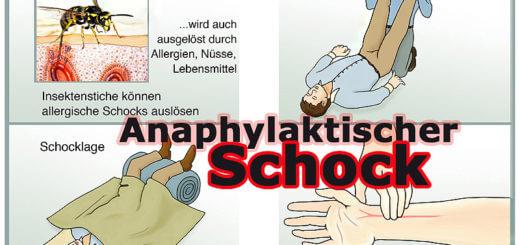 Medizinlexikon: Anaphylaktischer Schock