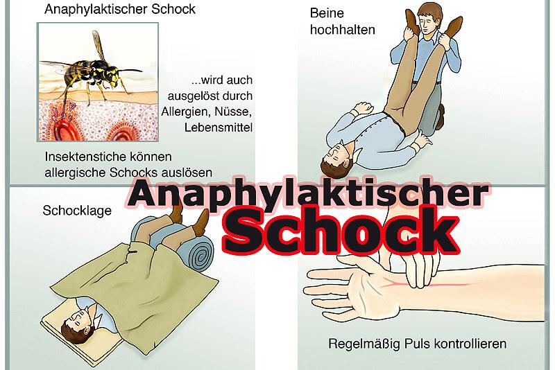 Anaphylaktischer Schock; Schockbehandlung