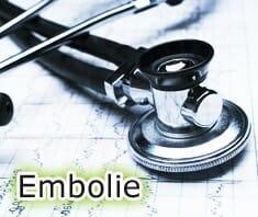 Was ist eine Embolie? | Medizinlexikon