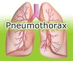 Medizinlexikon: Pneumothorax