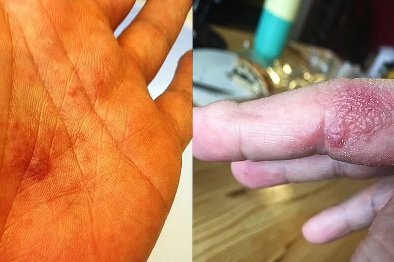 Urtikaria Ausschlag mit Bläschen an den Händen