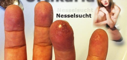 Nesselsucht (Urtikaria) | Krankheitslexikon