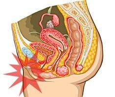Medizinlexikon: Vaginitis
