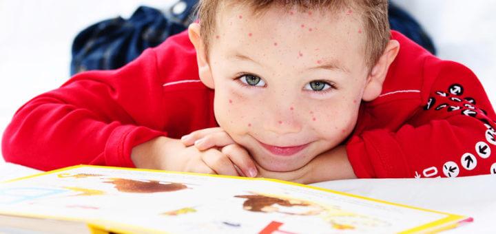 Masern | Kinderkrankheiten
