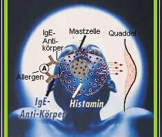 Histaminintoleranz (Histaminose)   Krankheitslexikon