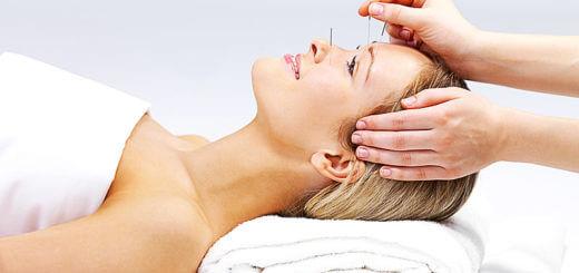 Akupunktur: was sie kann und wer von ihr profitiert