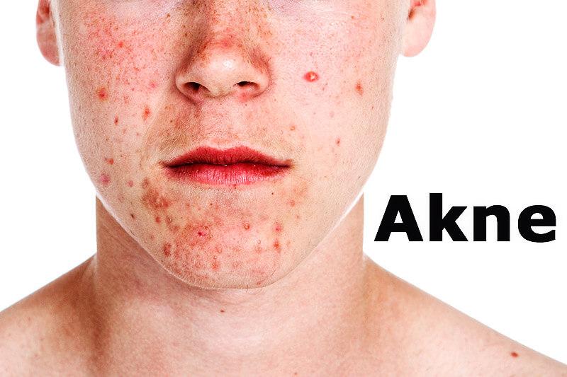 Akne | Krankheitslexikon