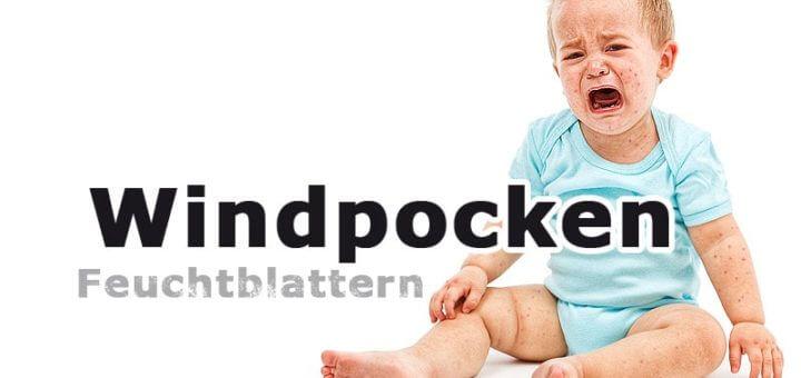 Windpocken (Feuchtblattern) | Kinderkrankheiten