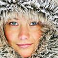 Kälteallergie, Kälteurtikaria