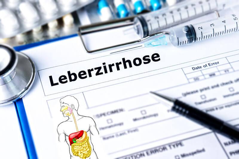 Diagnose Leberzirrhose