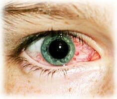 Xerophtalmie, trockene Augen