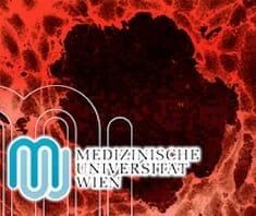 Brustkrebsforschung, MedUni Wien