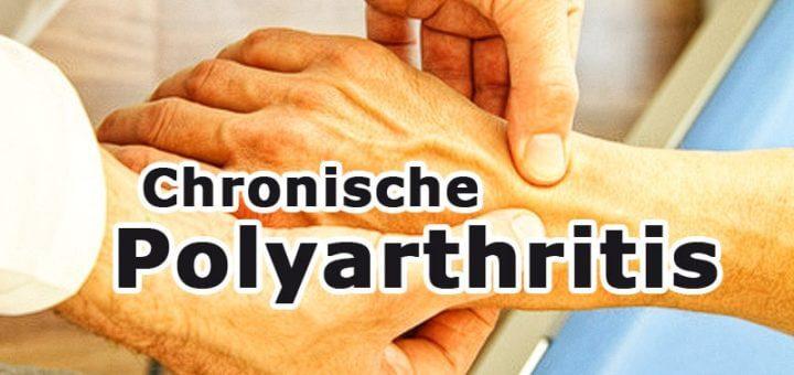 Chronische Polyarthritis: Rechtzeitige Früherkennung ist das Um und Auf