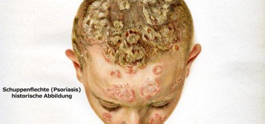 Psoriasis auf der Kopfhaut -