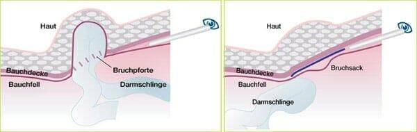 Leistenbruch, minimalinvasive OP, TEP-Technik