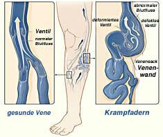 Krampfadern: Optimale Behandlung mittels Schaumverödung