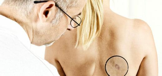 Zysten – Ursachen, Symptome & Behandlung