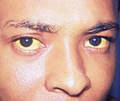 Hepatitis - Gelbfärbung der Augen