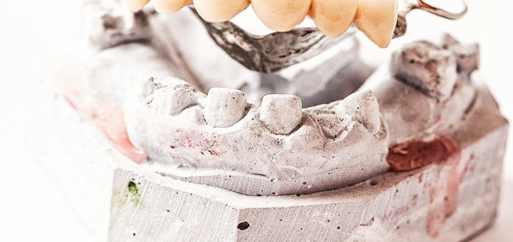 Zahnrestauration: Plombe, Krone oder Brücke?