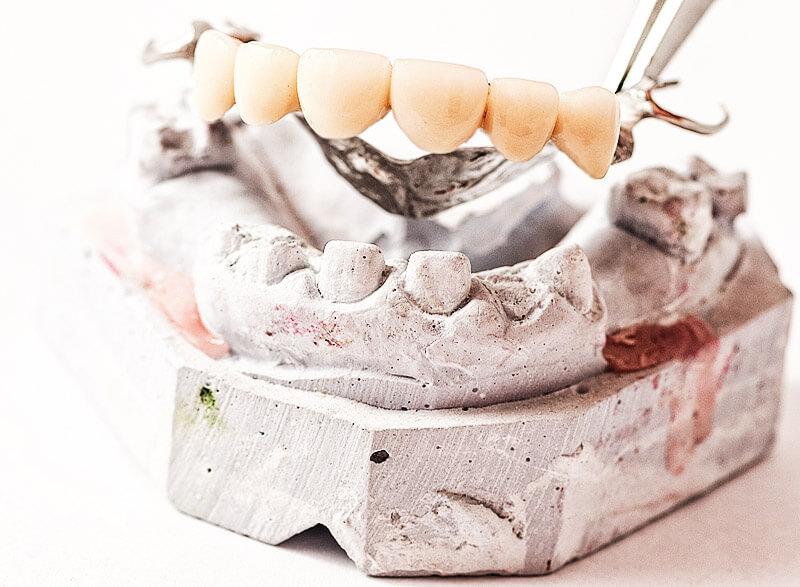 Zahnrestauration: Metall-Keramik-Brücke?