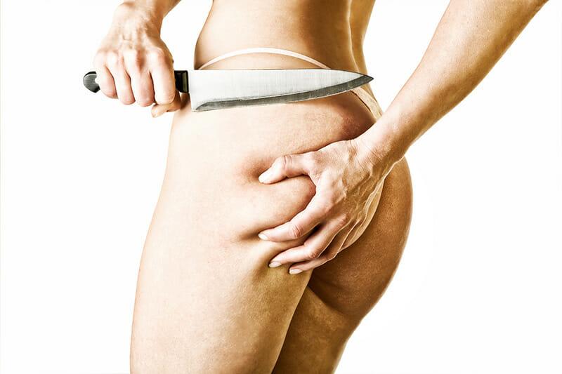 Cellulite - keine Panik bei Orangenhaut