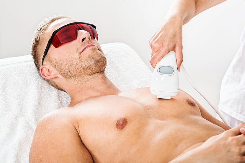 Haarentfernung mittels Laserepilation