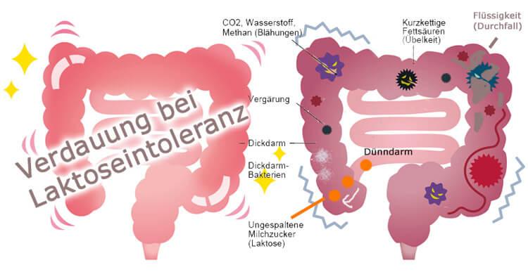 Verdauung bei Laktoseintoleranz