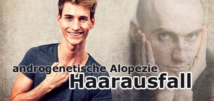 Haarausfall - androgenetische Alopezie