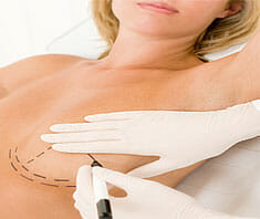 Brustvergrößerung – Gründe, Risiken & Verfahren