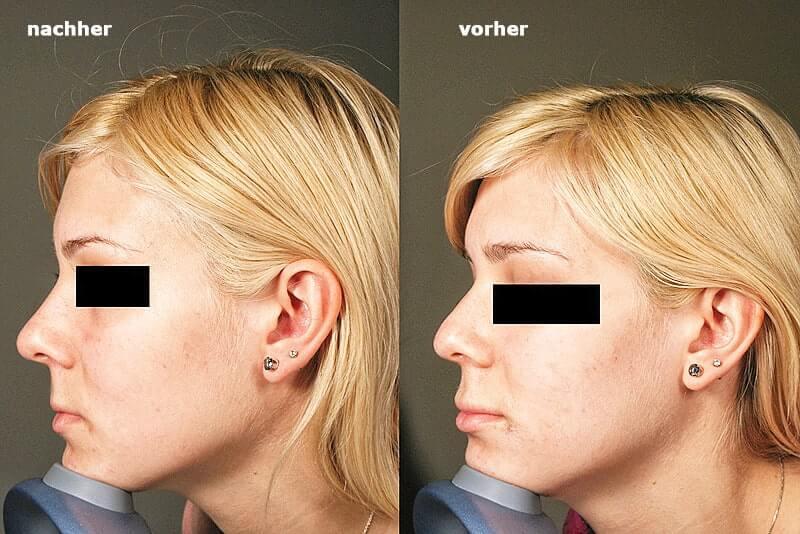 Nasenkorrektur mit Hyaluron-Filler