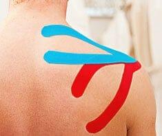 Akupunkturpflaster und Kinesio-Tapes – heilende Klebebänder?
