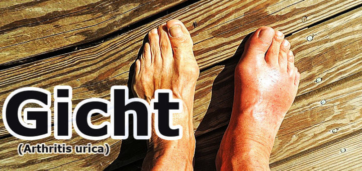 Gicht (Arthritis urica) | Krankheitslexikon