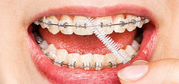 Zahnspangen richtig pflegen