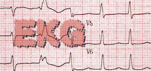 Was ist ein EKG (Elektrokardiogramm)?
