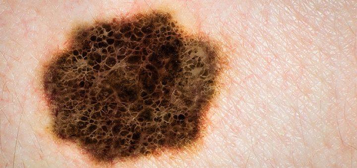 Malignes Melanom - schwarzer Hautkrebs