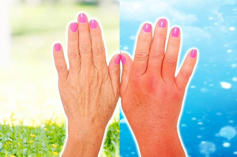 angeschwollene Hand bei Kälteallergie (Kälteurtikaria)