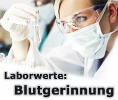 Blutgerinnung | Laborwerte