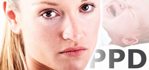 Die Postpartale Depression