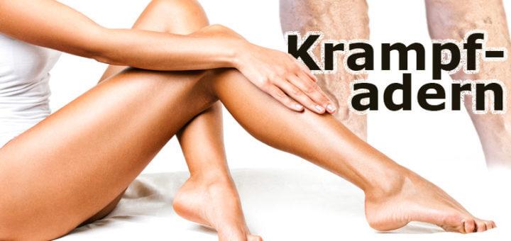 Krampfadern | Krankheitslexikon
