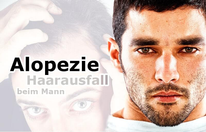 Haarausfall beim Mann (Alopezie)