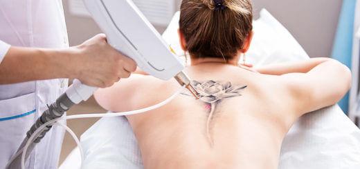 Tattooenfernung - was beim Lasern zu beachten ist