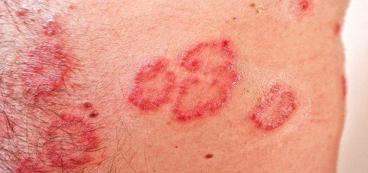 Psoriasis – großer Leidensdruck für Patienten