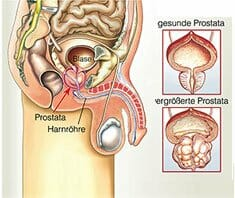 Prostatakrebsvorsorgeuntersuchung